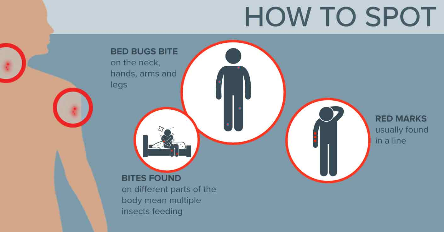 How To Spot Bed Bug Bites