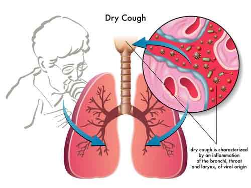 Dust Mite Symptoms